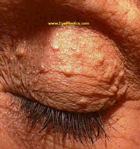 Epidermal Cysts