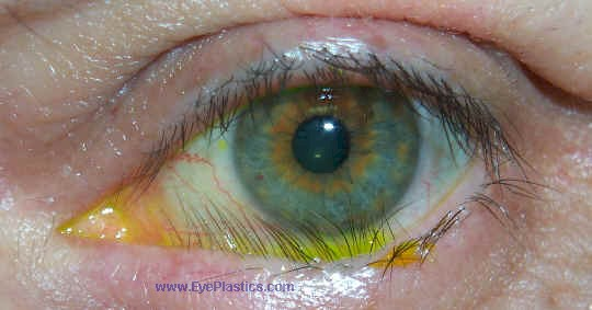 Trichiasis - Lashes pointing to the eye